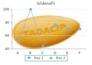 purchase sildenafil with a visa