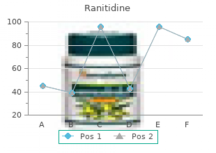 buy ranitidine 150mg fast delivery